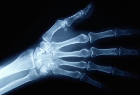 getty_rm_photo_of_hand_xray