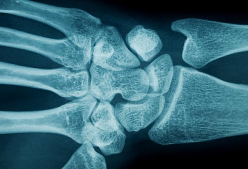 photolibrary_rf_photo_of_wrist_xray