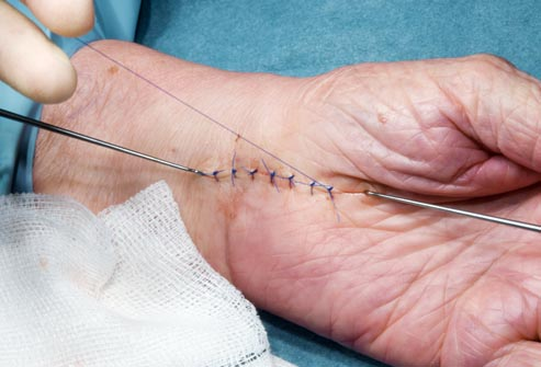princ_rm_photo_of_stitches_in_hand