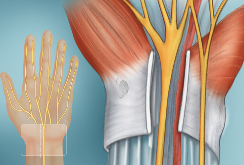 webmd_rf_photo_of_carpal_tunnel_surgery_illustration