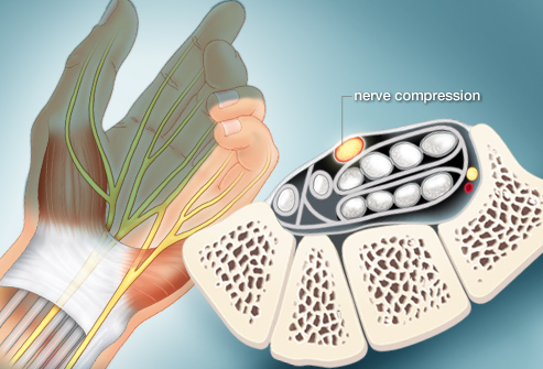 webmd_rf_photo_of_nerve_compression
